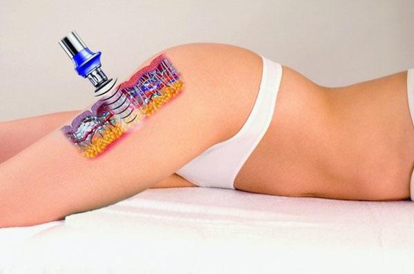 X-Wave – innowacyjne urządzenie wwalce zcellulitem